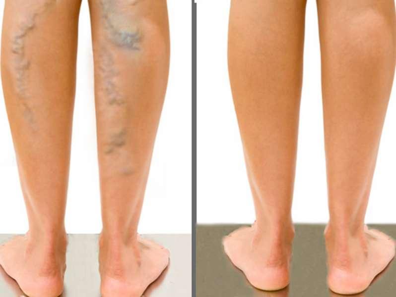 tratamentul varicozei în ukhta cu atât mai bine picioarele de frotiu în varicoză